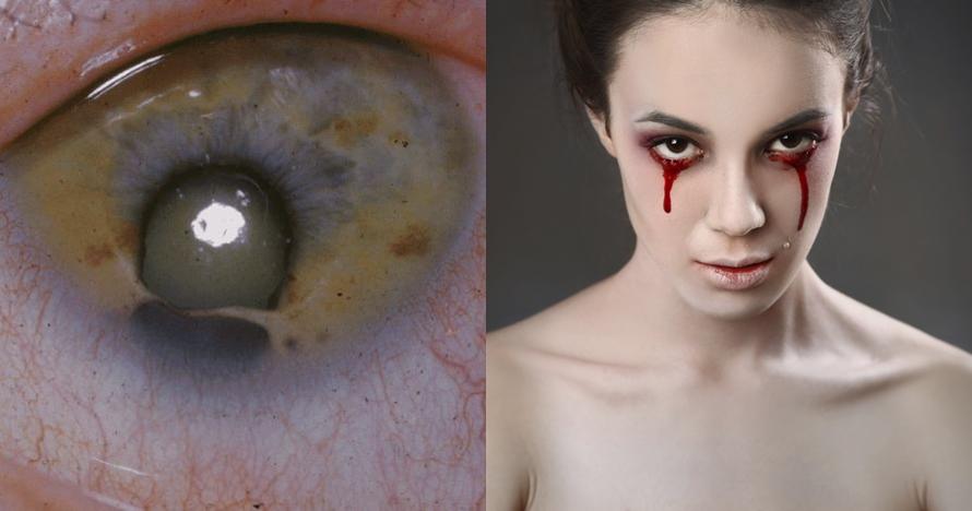 9 Masalah kesehatan mata paling mengerikan