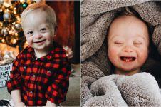 10 Potret Case, bayi penderita down syndrome yang ngegemesin banget