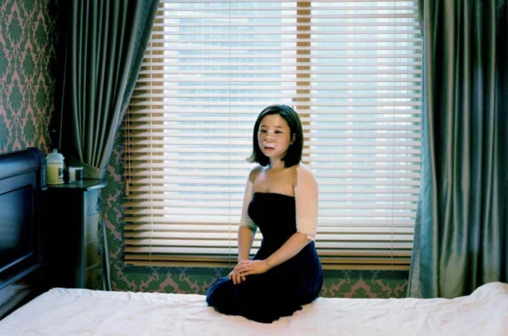 7 foto pasca operasi plastik mengerikan © jiyeo.com