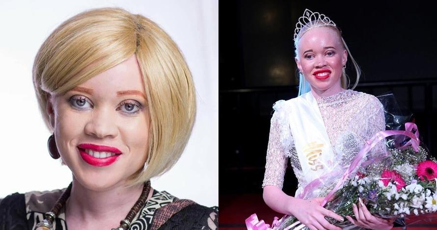 7 Pesona cantiknya Sithembiso Mutukura, Miss Albino asal Zimbabwe