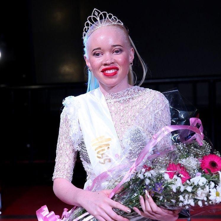 miss albino zimbabwe © 2018 brilio.net berbagai sumber