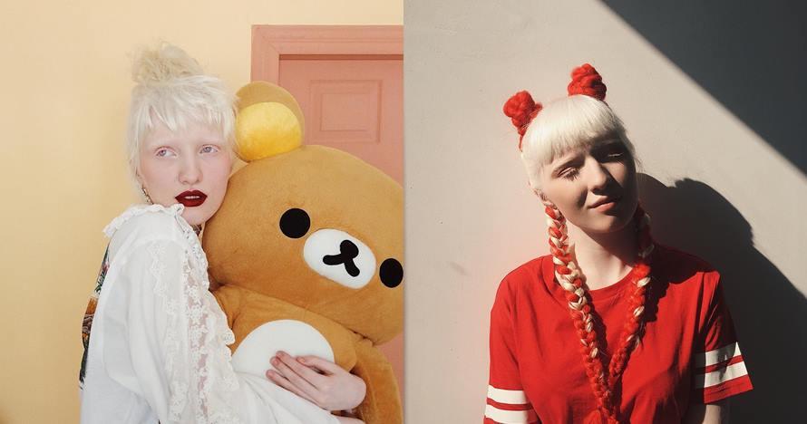 10 Pesona Nastya Zhidkova, model albino yang bermata indah