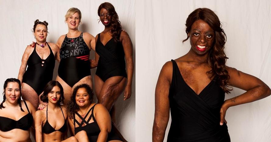 10 Pemotretan ini kampanyekan perbedaan fisik itu bukan masalah