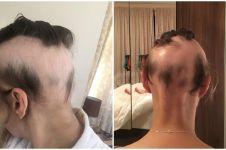 Stres jelang pernikahan, perubahan rambut wanita ini sungguh drastis