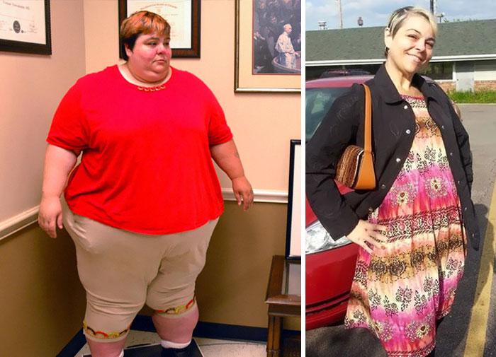 obesitas jadi kurus kurang dari 2 kwintal ©boredpanda.com