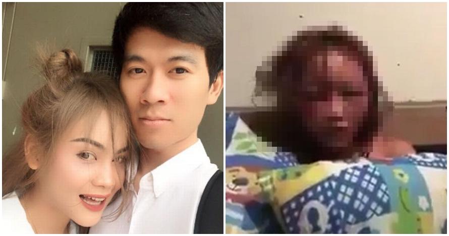 Terbakar cemburu, pria ini pukuli pacar & pamerkan di live Facebook