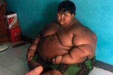 Ingat Arya Permana, bocah berbobot 188 kg? Kondisinya kini bikin kaget