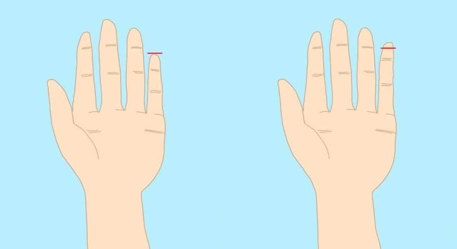 Ungkap kepribadian lewat panjang jari kelingking, kamu tipe yang mana?