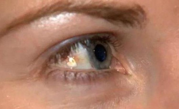 Tanam perhiasan di bola mata ini lagi hits, begini prosesnya