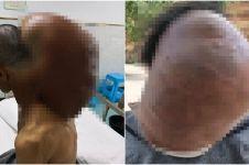 Selama 47 tahun, pria ini menderita tumor seberat 14,9 kilogram