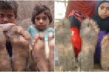 Terkena penyakit langka, kondisi kaki 3 anak ini berubah mengerikan