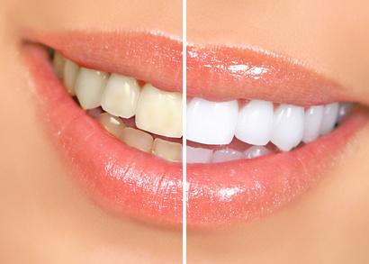 Ini bedanya percantik gigi dengan teknik veener dan whitening