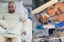 10 Kisah keajaiban medis mengharukan, divonis meninggal tapi selamat