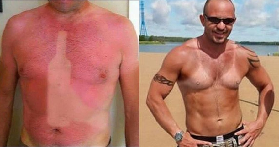 8 Pola kulit belang gara-gara sinar matahari ini nyeseknya di dada