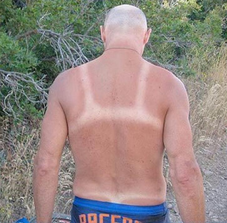 8 sunburn  © 2018 brilio.net