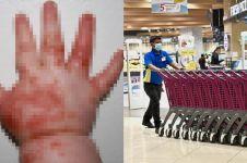 Tertular virus dari troli belanja, tangan bayi ini berubah mengerikan
