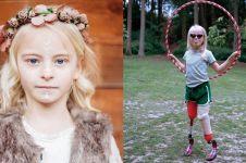 10 Potret Daisy-May Demetre, model cilik yang kedua kakinya diamputasi
