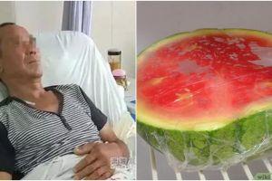 Cuma gara-gara makan semangka, 70 cm usus pria ini malah membusuk