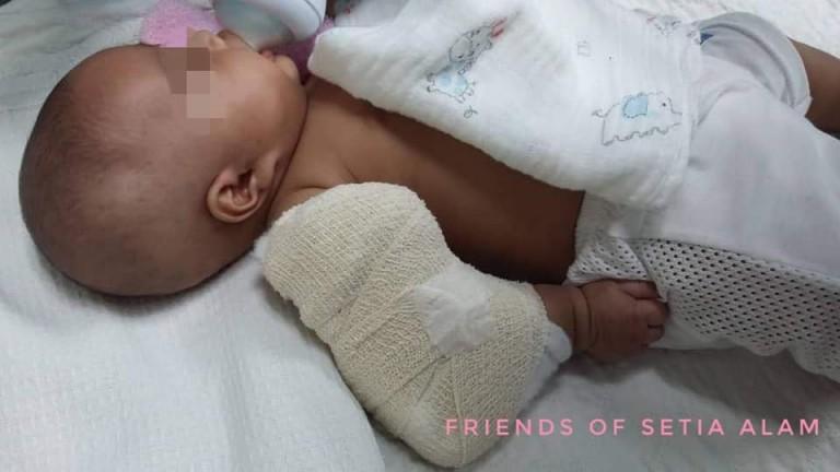 bayi disiksa pengasuh © 2018 worldofbuzz