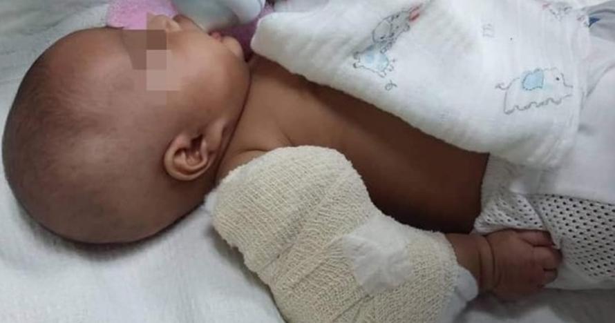 Diduga dianiaya pengasuh, bayi 3 bulan ini alami patah tulang lengan