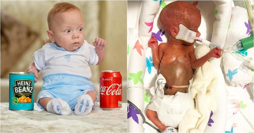 Kisah Theo Taylor, bayi seukuran kaleng soda yang bertahan hidup