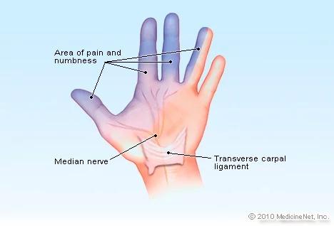7 Cara cegah sindrom Carpal, sakit nyeri hingga mati rasa pada tangan