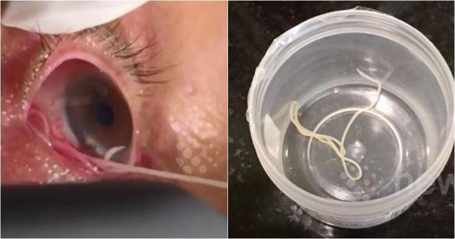 Cacing 15 cm bersarang di mata pria ini, operasinya bikin merinding