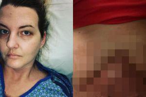 Alih-alih jadi cantik, wanita ini justru alami hal tragis saat operasi