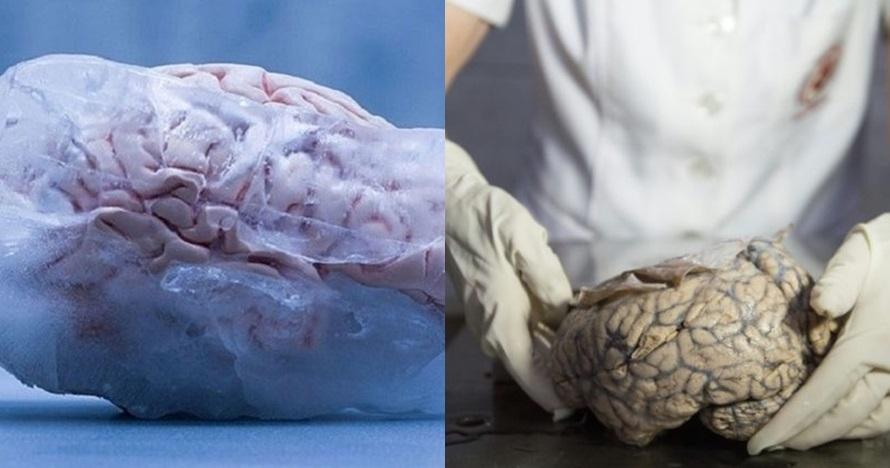 Alasan suami istri bekukan otaknya usai meninggal ini nyeleneh banget