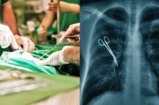 7 Kasus malapraktik mengerikan yang terjadi dalam dunia medis