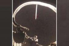 Sakit kepala pria ini tak biasa, penyebabnya bikin bergidik ngeri
