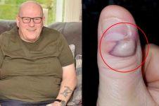 Sering gigit jarinya, pria ini alami nasib tragis