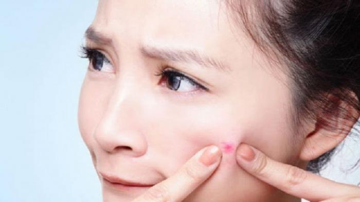 Cara menghilangkan jerawat tanpa merusak keindahan kulit
