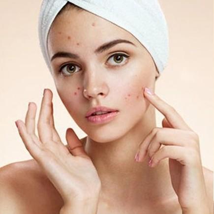 20 Cara menghilangkan jerawat secara alami dan bikin kulit halus