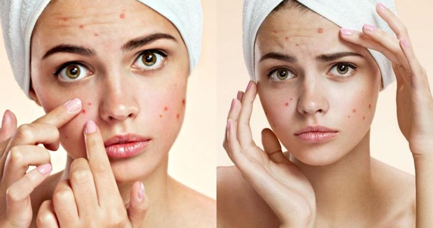 16 Cara menghilangkan bekas jerawat secara mudah, wajah jadi mulus