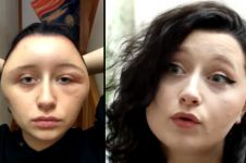 Pakai pewarna rambut, kepala wanita ini berubah mengerikan