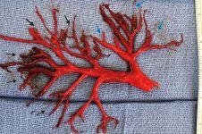 Potret bekuan darah pasien gagal jantung ini seperti akar, ngeri