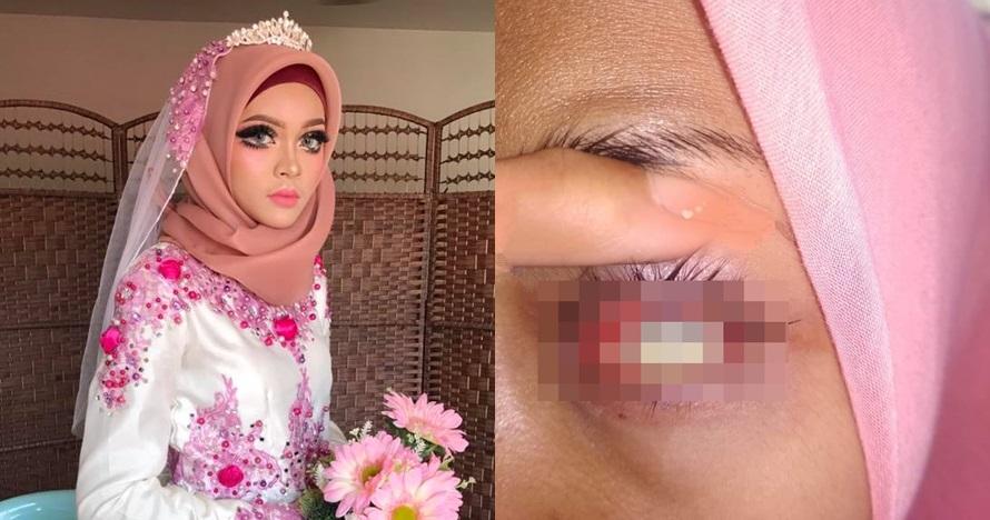 Pakai softlens saat acara pernikahan, nasib pengantin ini tragis