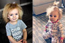 10 Potret Taylor McGowan, bayi imut dengan rambut mirip Einstein
