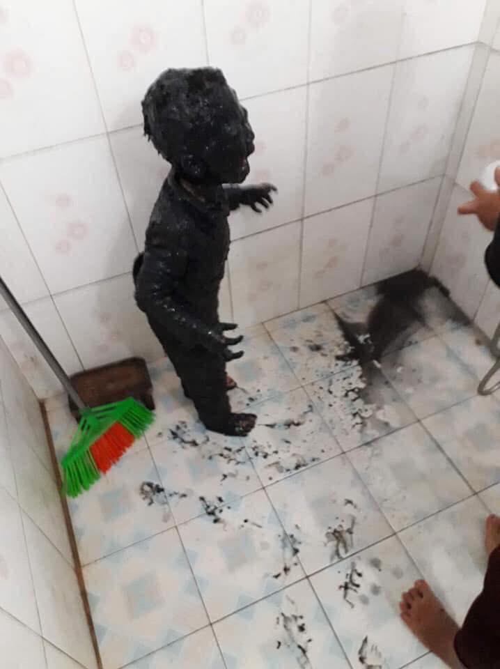bocah jatuh got © 2019 brilio.net