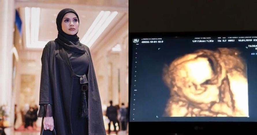 Curahan hati Nikita Mirzani berjuang hamil tanpa suami, bikin haru