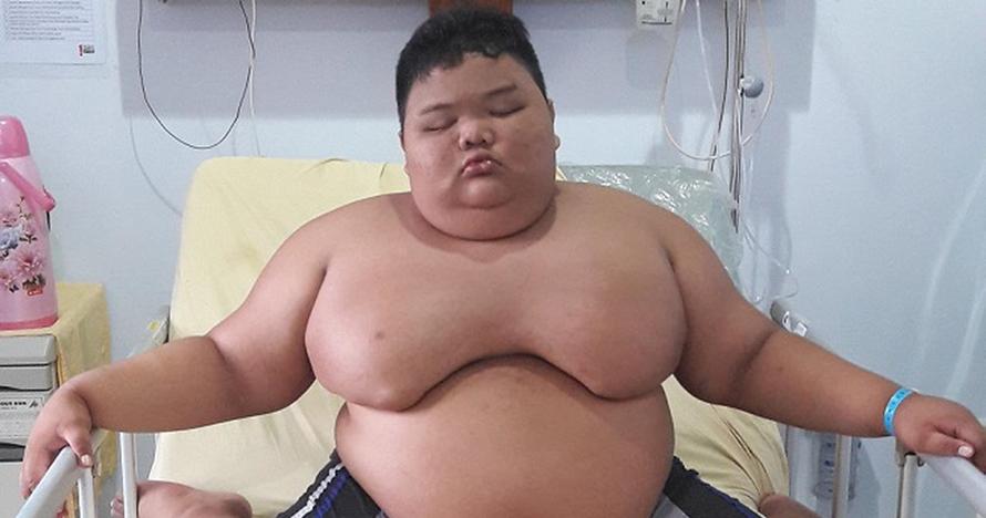 4 Kisah orang obesitas ini viral di Indonesia, terbaru Titi Wati