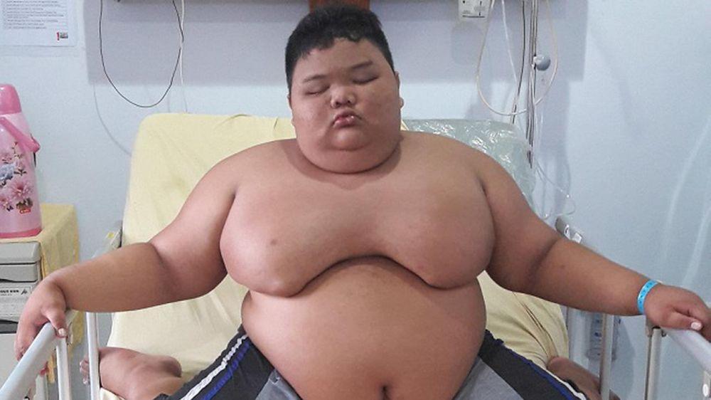 kisah orang obesitas © 2019 brilio.net