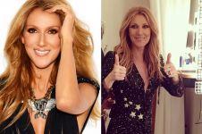 6 Potret terkini Celine Dion, terlalu kurus sampai tuai kritikan