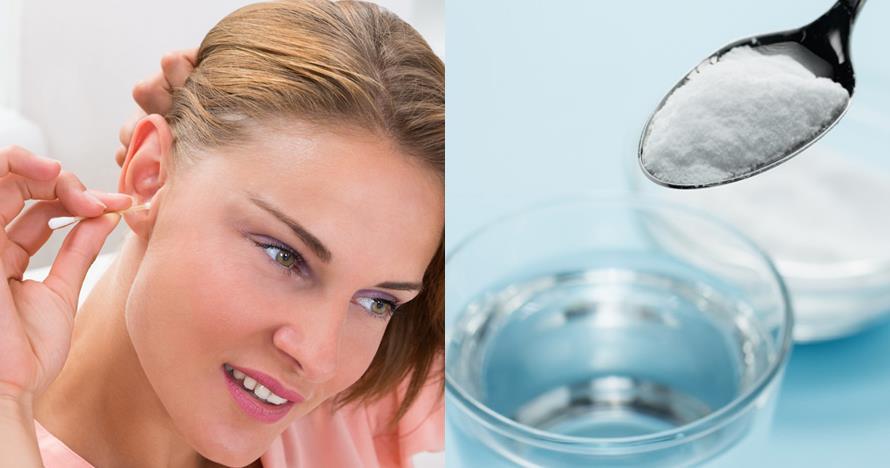 9 Cara membersihkan kotoran telinga beku dengan aman dan benar