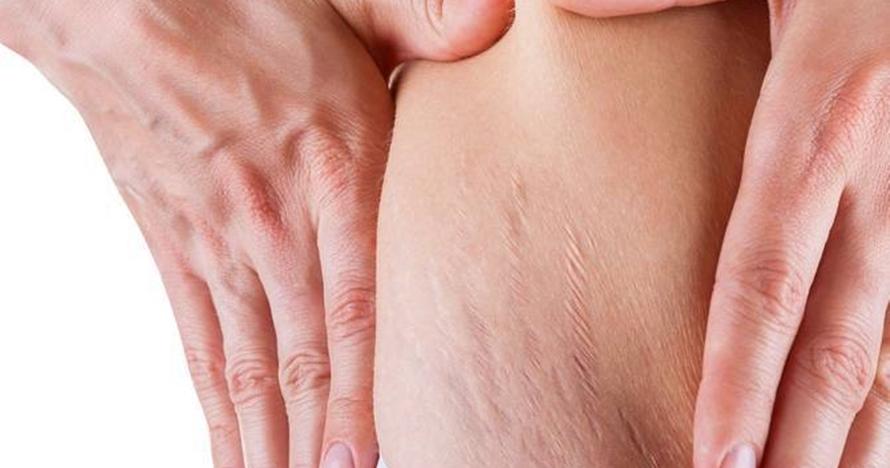 10 Cara menghilangkan stretch mark menggunakan bahan alami & murah