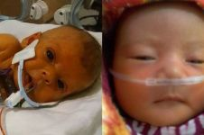 Kisah pilu orangtua minta edit foto anaknya tanpa selang medis