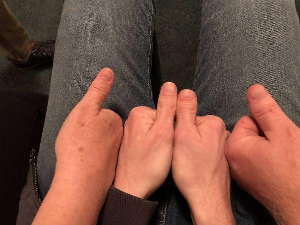 kelainan gen unik © boredpanda.com