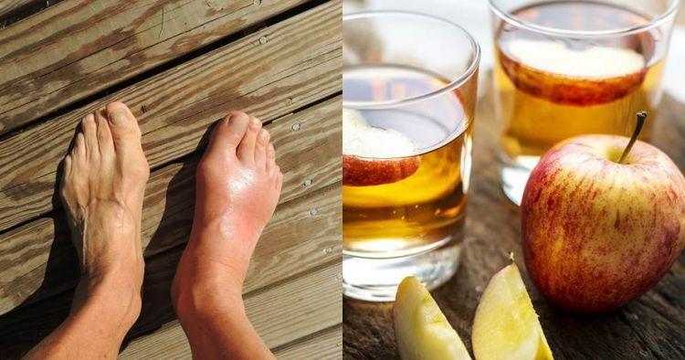 9 Makanan & minuman turunkan asam urat, alami tanpa efek samping