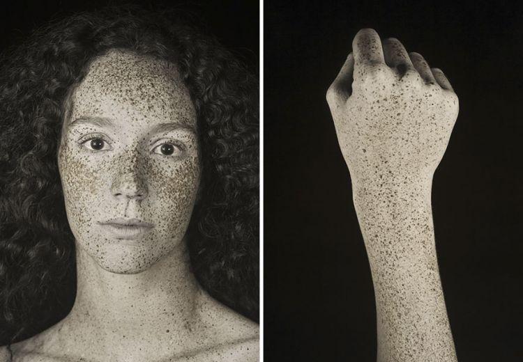 10 Foto kondisi wajah ini jadi bukti sinar matahari berbahaya